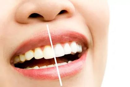 Cara Alami Memutihkan Gigi Putih dan Bersih