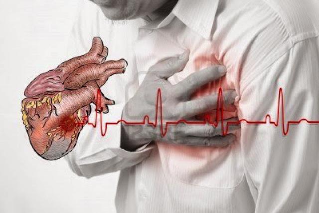 8 Cara Mengatasi Penyakit Jantung Koroner Secara Alami