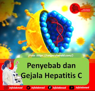 Penyebab dan Gejala Hepatitis C