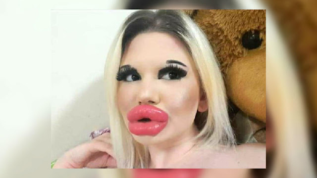 """Девушка """"с самыми большими губами в мире"""" хочет снова их увеличить"""