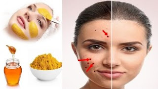 Acne Prevention Tips and Home Remedies