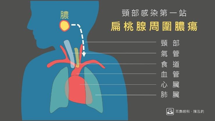 扁桃腺周圍膿瘍是深頸部感染的第一站