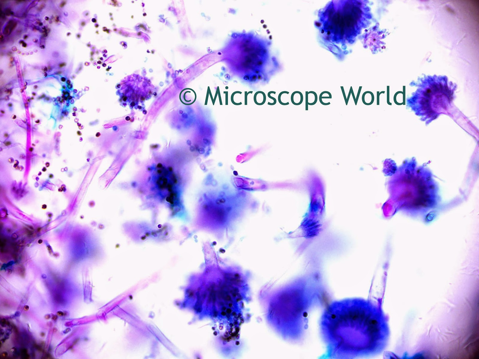 Microscope World Blog: Mold Under the Microscope