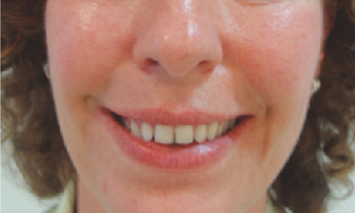 gummy smile after treatment with botox