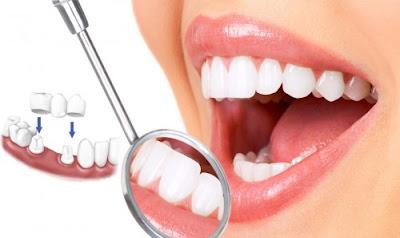 răng implant