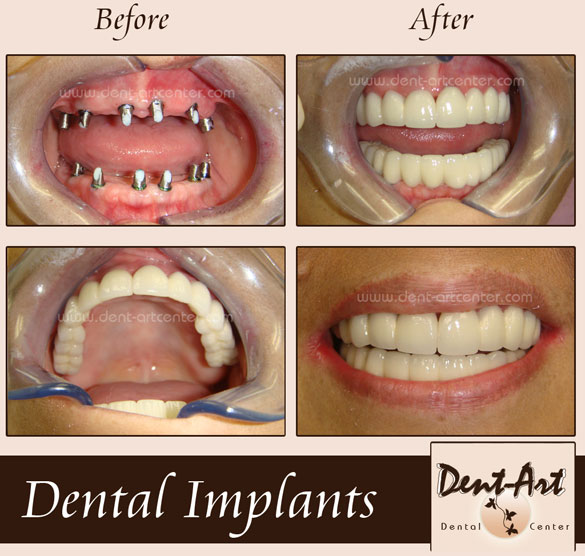 Immediate Denture And Permanent