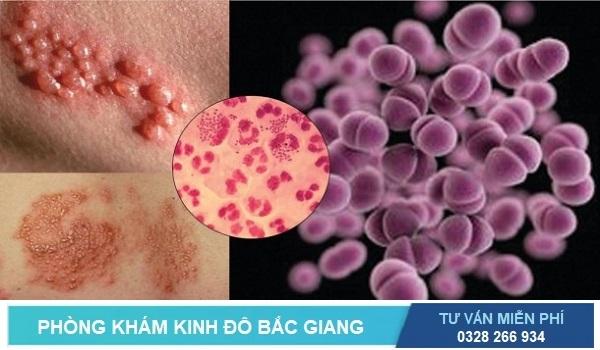 Dấu hiệu, triệu chứng, biểu hiện của bệnh lậu
