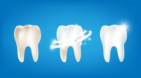 Zahnhygiene ist wichtig