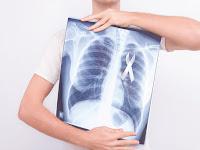 Wapada kanker paru-paru, kenali gejalanya
