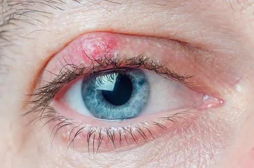 Blepharitis causes