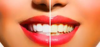 أنواع تبييض الأسنان وافضلها