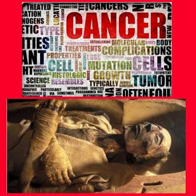 Penyakit kanser adalah buatan manusia kini, Tahukah anda penyelidik dari University Of Manchester,United Kingdom telah membuat kesimpulan bahawa kanser adalah penyakit buatan manusia moden.