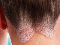 Terkena Psoriasis/Gatal/Alergi Lainnya? Ini Ramuan Untuk Mengobatinya ala dr. Zaidul Akbar