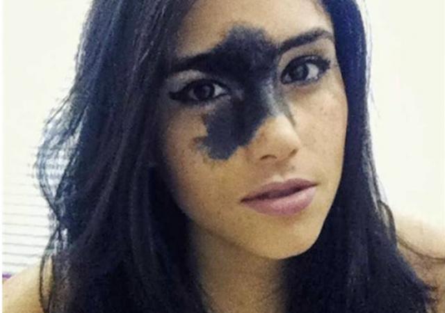 لقبوها بـ'القبيحة' بسبب وحمة سوداء على وجهها.. وهذا ما حدث لاحقاً بعد أن كبرت.. هذا ما فعلته