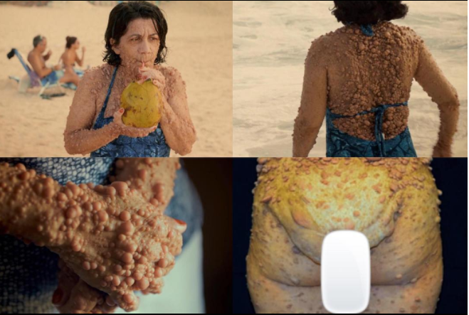 Checkout this mum with bubble tumors in bikini