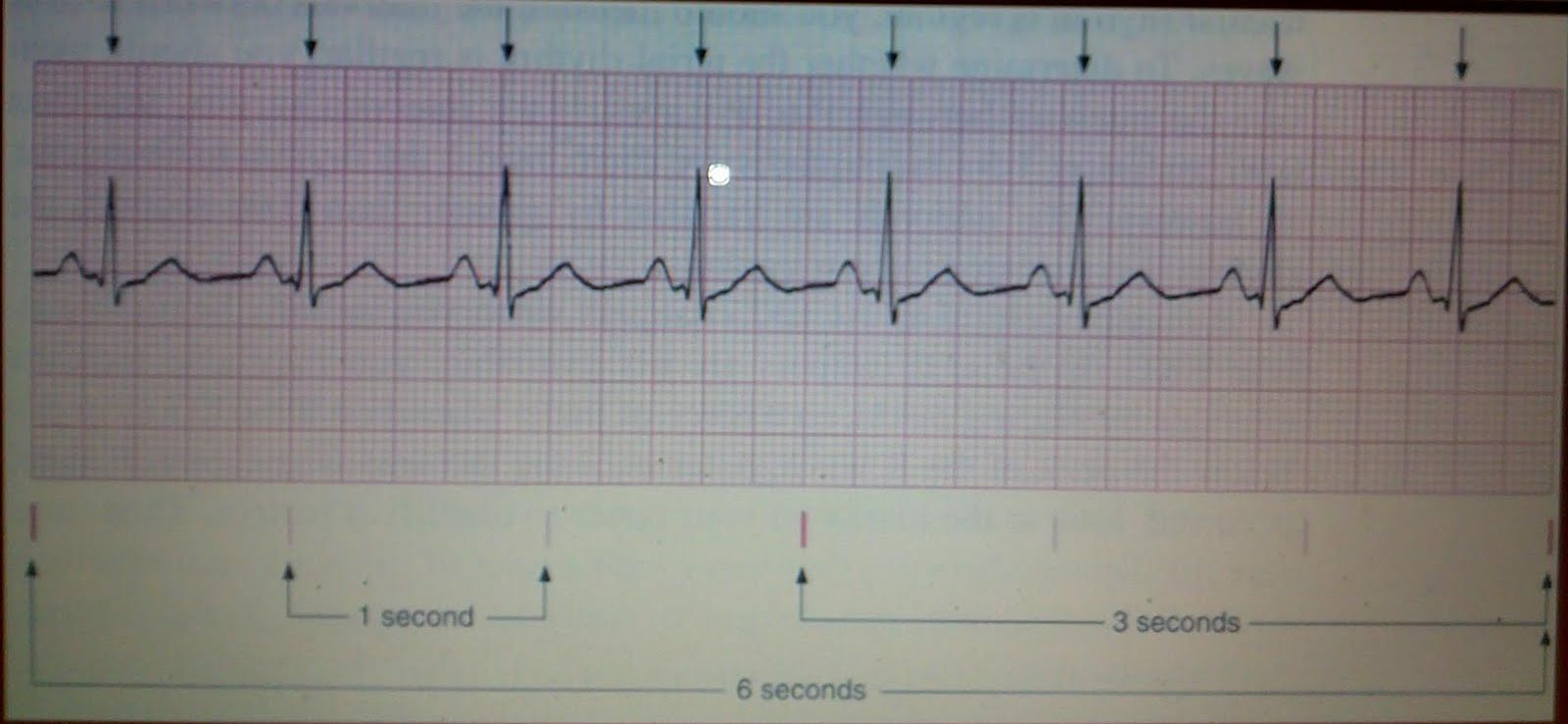 Manage somehow. heart rate on ekg strip