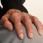 Artritis Psoriásica