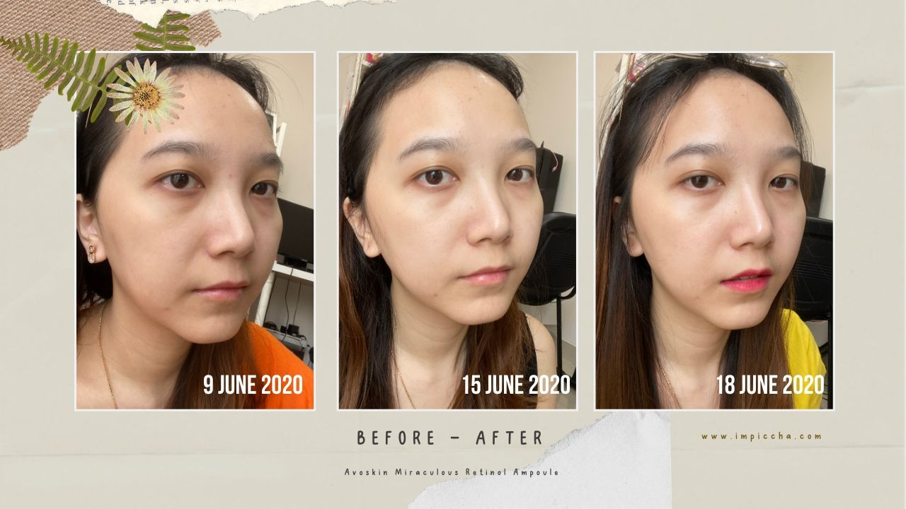 BEFORE AFTER AVOSKIN RETINOL