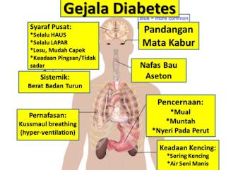 https://mustahabbah.blogspot.com/2017/07/penyebab-diabetes-melitus-dan-cara.html
