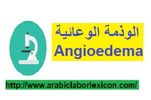 الوذمة الوعائية Angioedema
