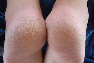 Dry Feet 90