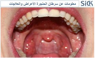 معلومات عن سرطان الحنجرة الأعراض والعلاجات