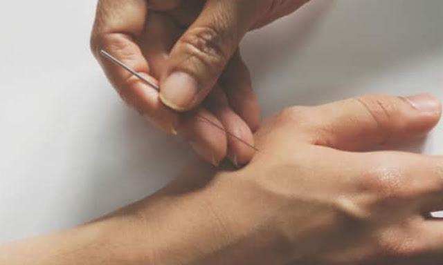 Manfaat Akupuntur Untuk Stroke