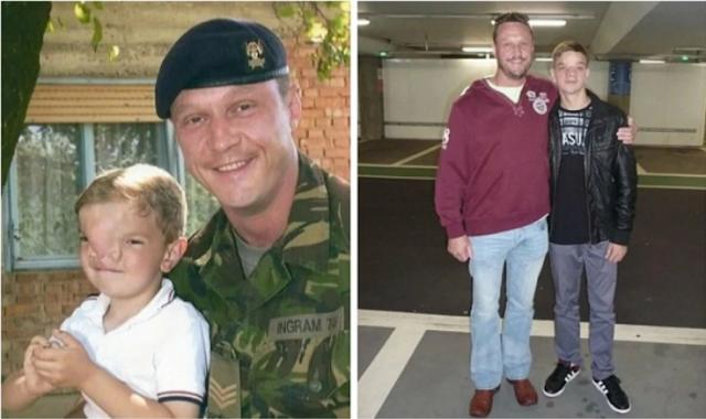Военный собрал 13 млн рублей ради мальчика с деффектом лица. Как сложилась судьба парня спустя 17 лет