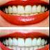 تبيض  الأسنان والوسائل المتوفرة  بقلم الدكتورة مجد الفرا