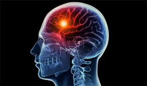 herbal stroke ringan yang pada mulut, Memulihkan Stroke Ringan atau Stroke Berat, Tanda-Tanda Terkena Penyakit Stroke Ringan