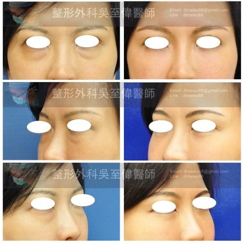 ▲內開眼袋手術+眼袋脂肪移植填補淚溝*