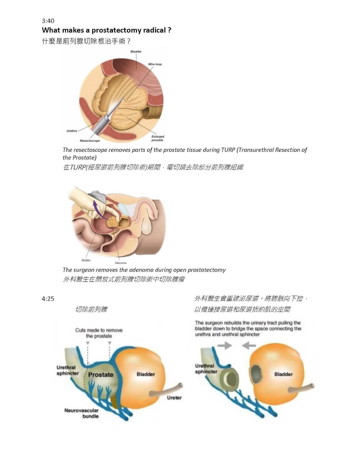 Richmond Chinese Prostate Cancer Support Group 列治文華人前列腺癌支援網絡: Radical Prostatectomy for Prostate Cancer (前列腺切除 ...