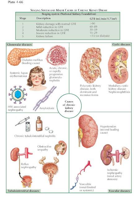 STAGING SYSTEM AND MAJOR CAUSES OF CHRONIC KIDNEY DISEASE