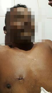 Crime Brutal na zona rural de São Bernardo, homem é vitíma de latrocinio