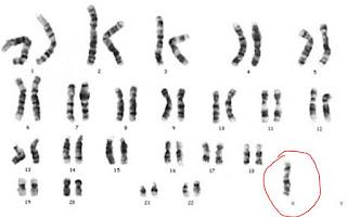 http://www.scienzita.it/lezioni/biologia/mutazioni_monosomia.jpg