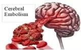 Cerebral Embolism