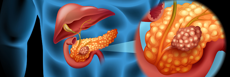 How to Detect Pancreatic Cancer Early?