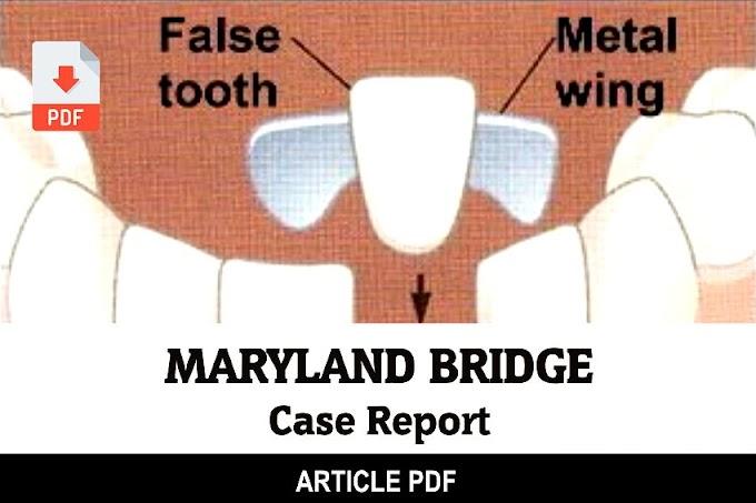PDF: Maryland Bridge - Case Report