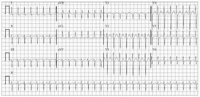 ECG of AVNRT