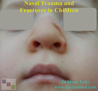 Nasal trauma and fractures in children