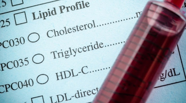 What are Cholesterol Numbers and How to Understand Them?