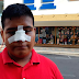 Le fracturan la nariz a joven en CBTIS de Veracruz