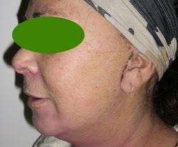 chirurgia estetica viso caserta