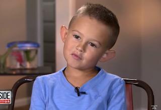 6χρονο παιδί που δεχόταν επί χρόνια bullying για τα αυτιά του που έμοιαζαν με ξωτικού, κάνει πλαστική επέμβαση και γίνεται αγνώριστο - PHOTOS
