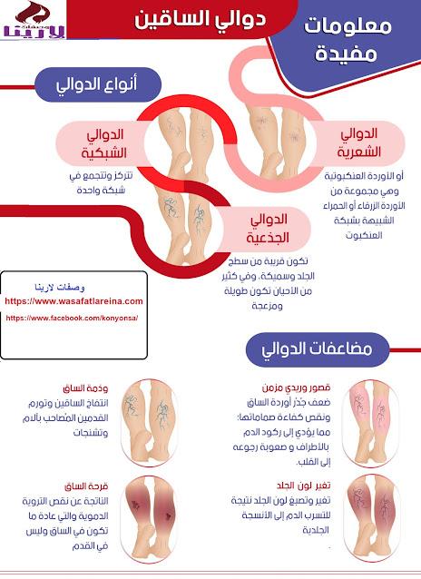 علاج دوالي الساقين,علاج دوالي الساقين بدون جراحة,دوالي الساقين,علاج الدوالي,علاج دوالى الساقين بالحقن,علاج دوالي الساقين بالليزر,دوالي الساقين علاج,دوالى الساقين,علاج الدوالي بالليزر,دوالي الساقين عند الحامل,علاج دوالي الساقين بسرعة,كيفية علاج دوالي الساقين,علاج دوالي الساقين الليزر,علاج دوالى الساقين,علاج الدوالى بالحقن,اسباب دوالي الساقين,علاج الدوالي في الساقين,طرق طبيعية لعلاج دوالي الساقين,دوالى الساقين عند النساء,طرق علاج الدوالي الساقين,علاج لدوالى الساقين