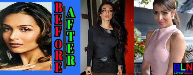MALAIKA ARORA Bollywood Actresses Before and After Plastic Surgery