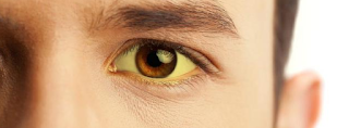Kenali Ciri-ciri Difteri dan Lakukan Pengobatan Secepatnya untuk Hasil yang Optimal
