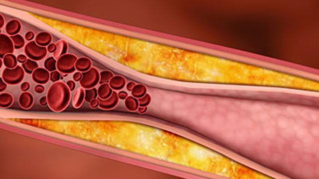 Penanganan Kolesterol dengan Konsep Karnus