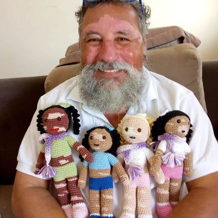 Grandad With Vitiligo Crochets Dolls To Make Kids With The Same Condition Feel Better