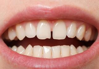 What causes Gap between Front Teeth